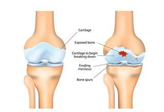 http://krishnahomeoclinic.com/wp-content/uploads/2017/07/Arthritis-320x219.jpg