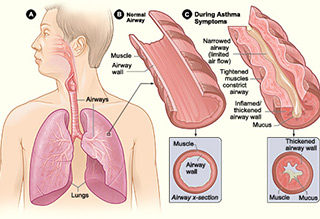 http://krishnahomeoclinic.com/wp-content/uploads/2017/07/Asthma-320x219.jpg