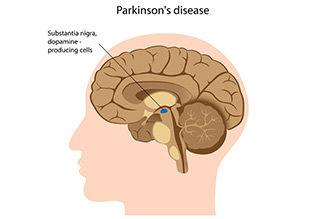 http://krishnahomeoclinic.com/wp-content/uploads/2017/07/Parkinson's-disease-320x219.jpg