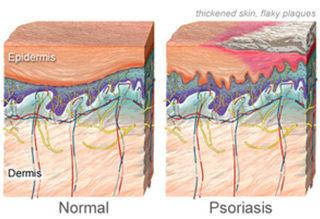http://krishnahomeoclinic.com/wp-content/uploads/2017/07/Psoriasis-320x219.jpg